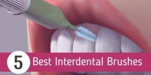 Best Interdental Brushes