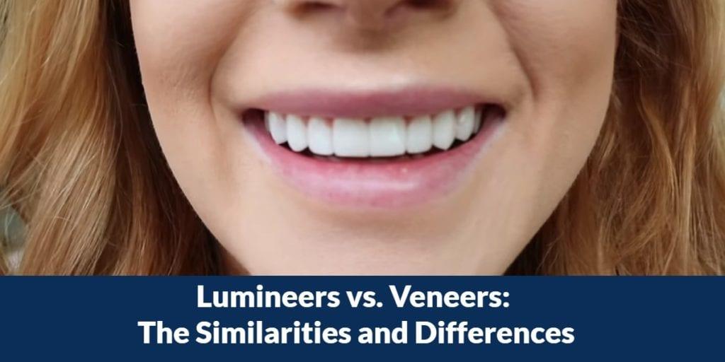 Lumineers vs. Veneers: The Similarities and Differences