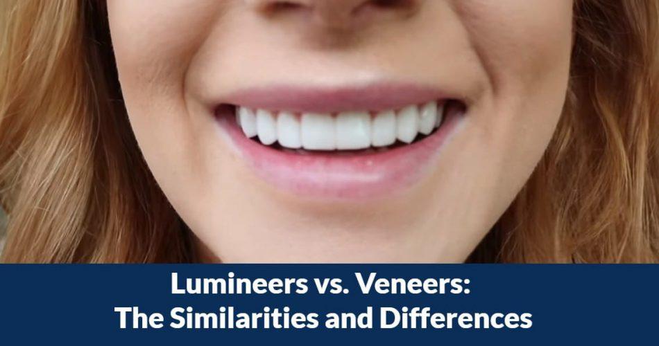 Lumineers vs. Veneers