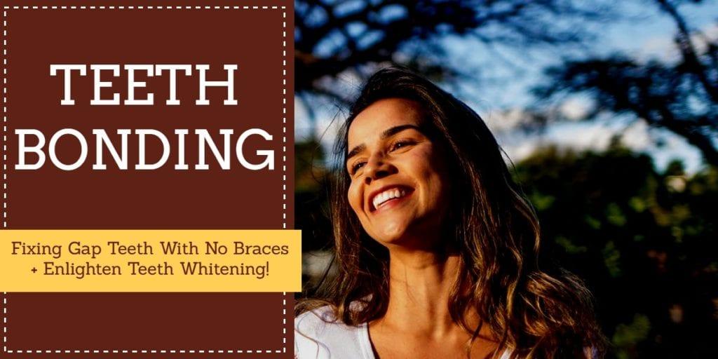 10 Guide For Dental Bonding - Details on Tooth Bonding Methods Proceedures