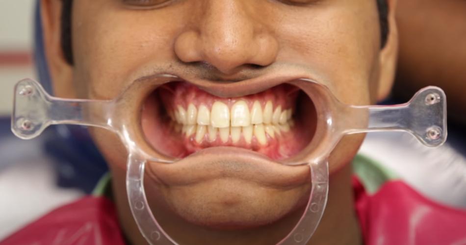 Genius Dental Marketing Ideas to Grow Your Practice