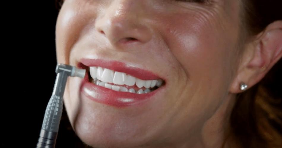 Dental Polisher For Home