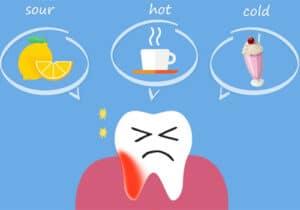 Avoid Using Tooth-Whitening Gel