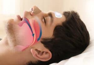 Is Teeth Grinding A Sign Of Sleep Apnea