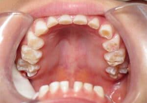 Can Grinding Your Teeth Cause Loose Teeth?
