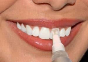 Tooth-Whitening Gel
